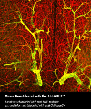 Mouse Brain Cleared with X-CLARITY